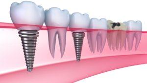 implant dentar sector 6