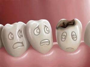 tratare carie dentara